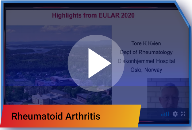 EULAR HIGHLIGHTS 2020
